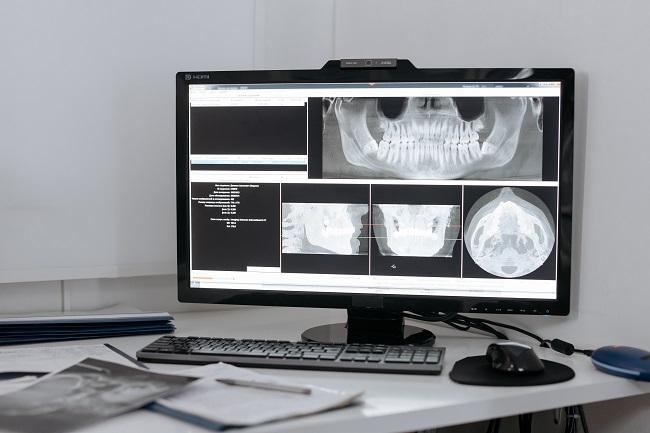 big data dans les soins de santé